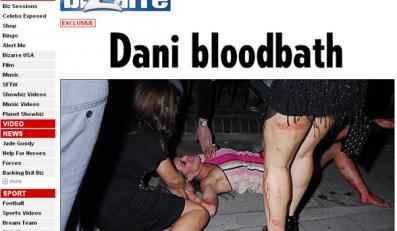 Zazdrosne kobiety pobiły dziewczynę piłkarza
