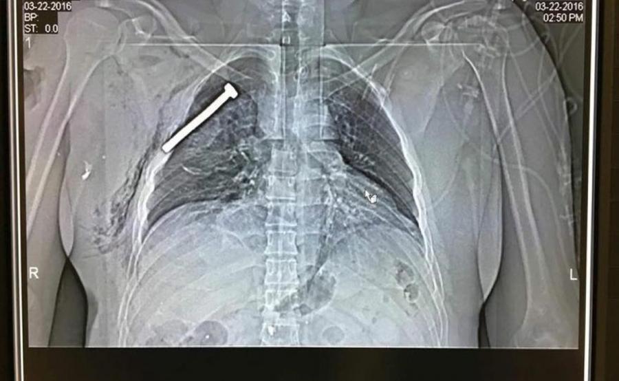 Zdjęcie rentgenowskie ofiary zamachów w Brukseli wykonane w wojskowym szpitalu w Neder-over-Heembeek. Na fotografii widać śrubę wbitą w klatkę piersiową rannego pacjenta